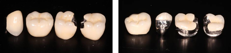 Ceramometal Crowns - West Bloomfield, MI