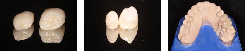 Dental Crowns - West Bloomfield, MI